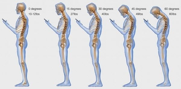 Problemas de salud causados por el uso excesivo de Smartphones 1