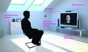 Microsoft Kinect podría ayudar a las víctimas de un derrame cerebral a recuperarse de la parálisis facial