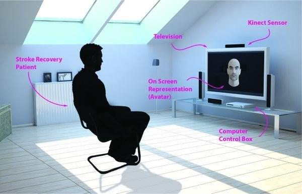 Microsoft Kinect podría ayudar a las víctimas de un derrame cerebral a recuperarse de la parálisis facial 1